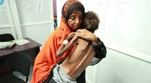 Yemen – a Developing Humanitarian Disaster the World Seems to Ignore